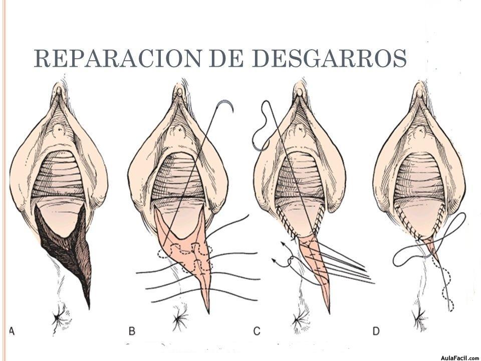 como curar grietas vaginales