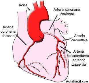 infarto
