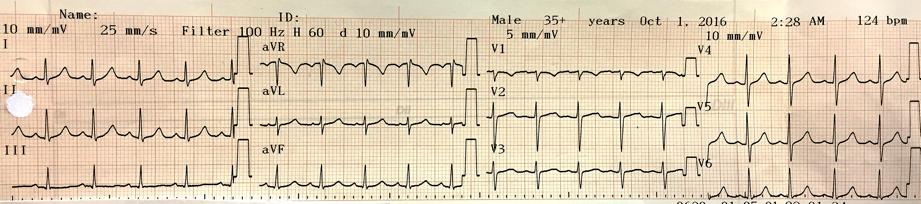 Imagen 1. Electrocardiograma de 12 derivaciones